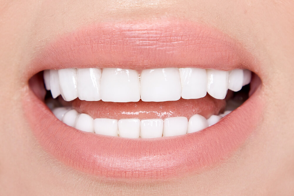 leende med tänder